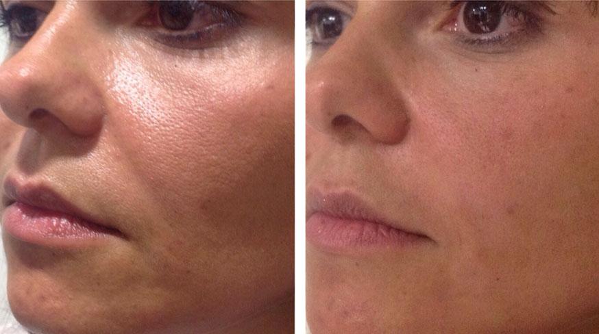 Laser treatments hair removal, skin tightening - Clarkson