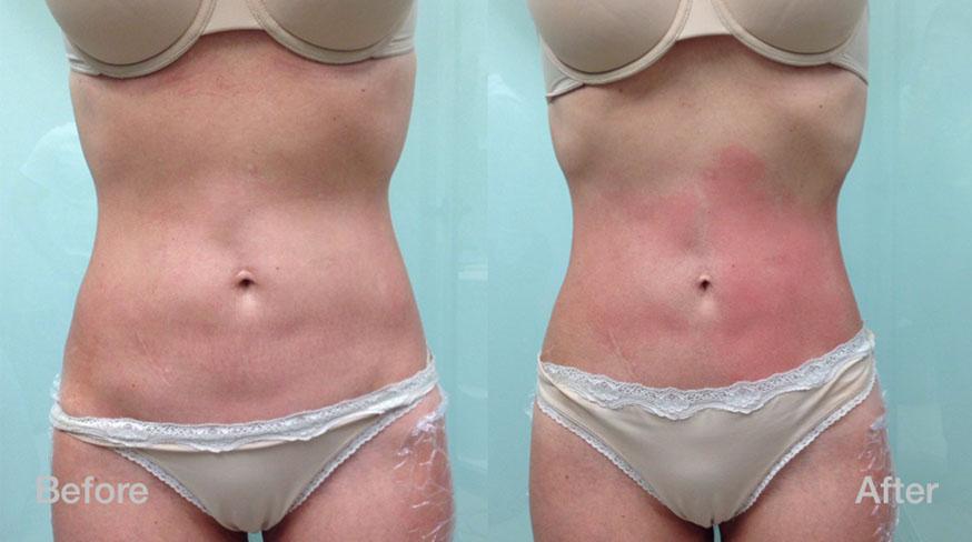 Laser Treatments Hair Removal Skin Tightening Clarkson