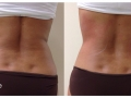 TightSculpting™ Back Tightening (Piano + SupErficial). After image is Immediately After Tx1. Courtesy of Dr. A.Gaspar