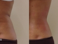 TightSculpting™ Back Tightening (Piano + SupErficial). Courtesy of Dr. A.Gaspar