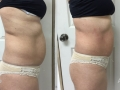 TightSculpting™ Abdomen (Piano + SupErficial)