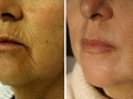 Peri-Oral full-field skin resurfacing. 60 days after. Courtesy of Dr. Paciolla