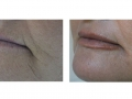 Peri-Oral full-field skin resurfacing. 40 days after. Courtesy of Dr. Ivano Luppino