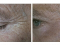 Peri-ocular full-field resurfacing. 60 days after. Courtesy of Dr. Paciolla