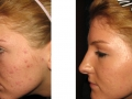 Acne and acne scars full-field skin resurfacing. After 8 weeks.