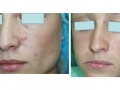 Traumatic Scars full-beam and patterned skin resurfacing. After 10 months. Courtesy of Dr. Matyunin