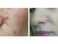 Traumatic Scars full-beam and patterned skin resurfacing. After 2 years. Courtesy of Dr. Matyunin