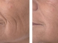 Skin tightening with SMOOTH® mode. Courtesy of Dr. Gaspar