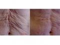 Skin rejuvenation. After 1 year. Courtesy of Dr. Gansel