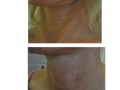 Skin rejuvenation. After 3 treatments. Courtesy of Dr. Gansel