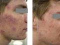 Acne treatment. Courtesy of R. Sult